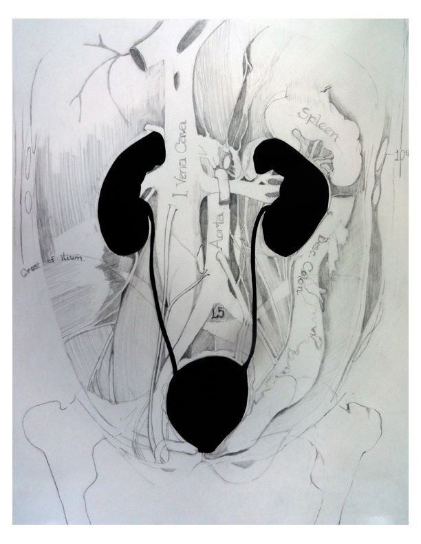 krista Kidney